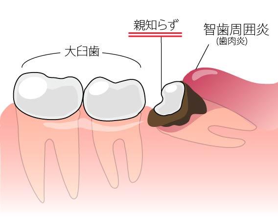 親知らず 智歯周囲炎との関係