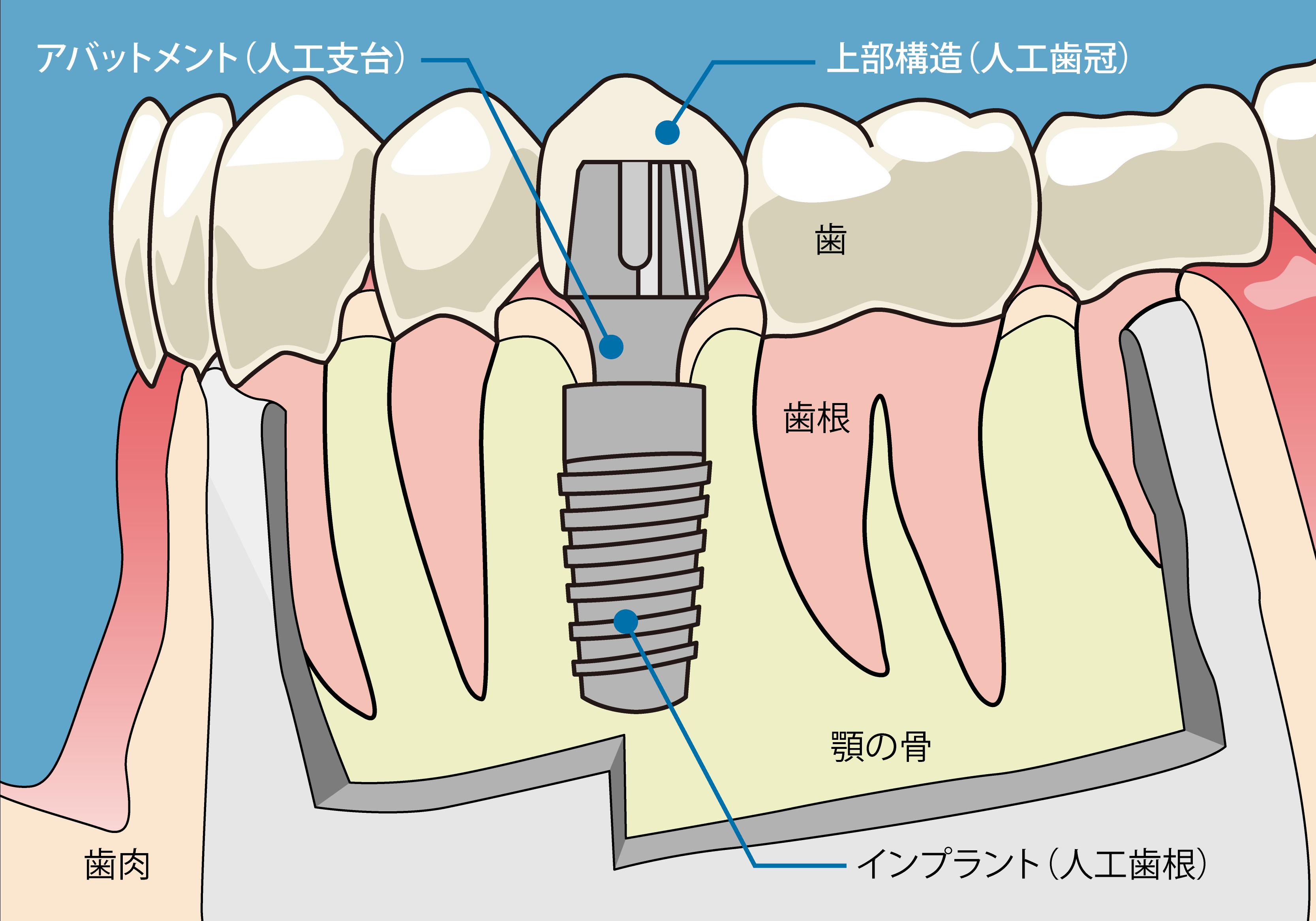 インプラント 構造