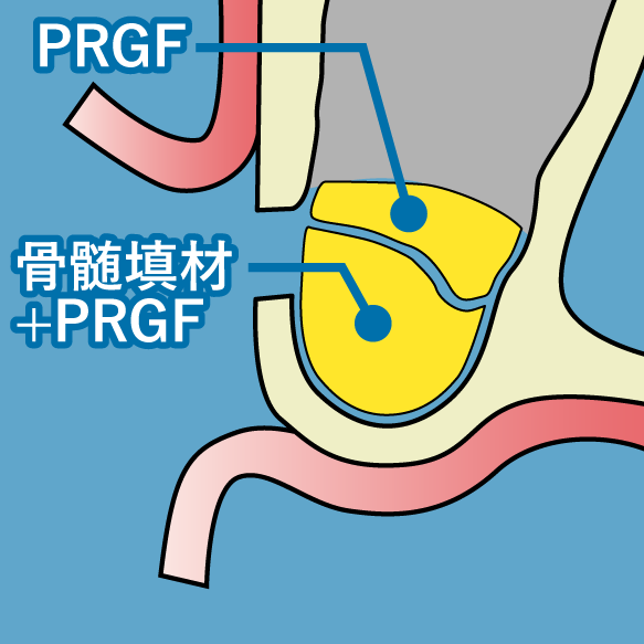 PRGF 骨補填材を填入