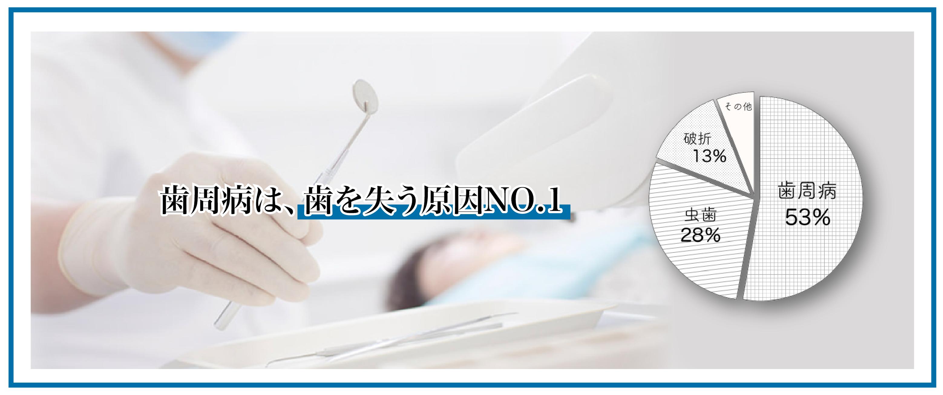 歯周病は歯を失う原因NO.1
