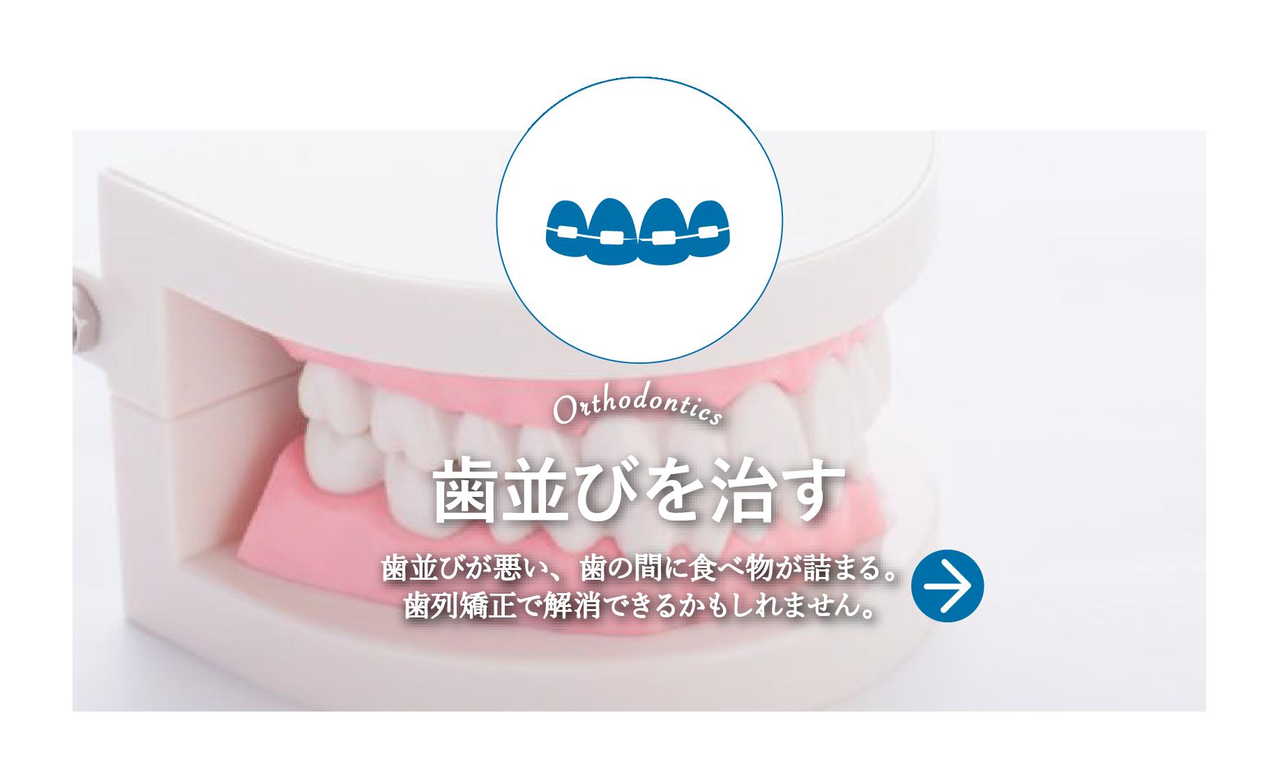 歯並びを治す 矯正治療