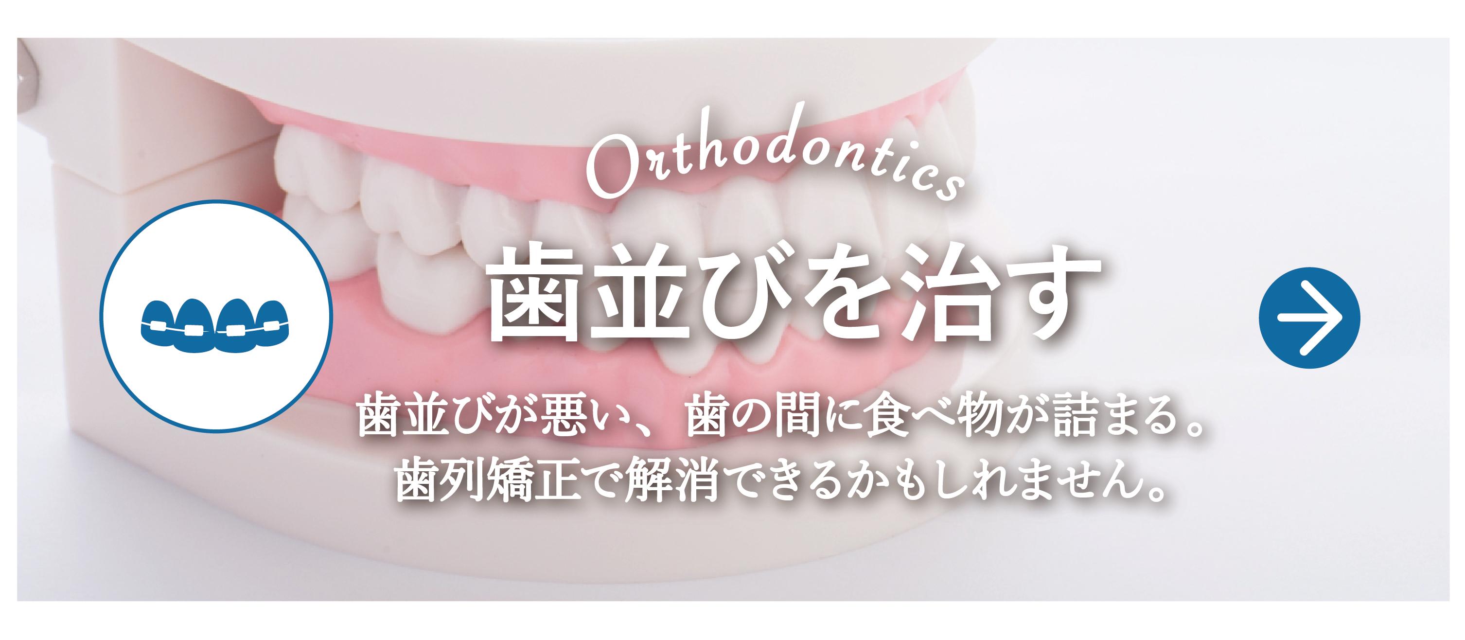 歯並びを治す 矯正