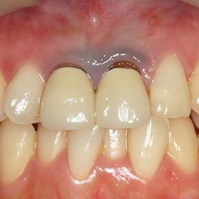歯ぐきの変色